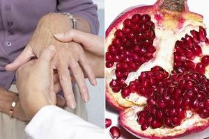 «آرتروز» را اینگونه درمان کنید/ علائم هشدار دهنده