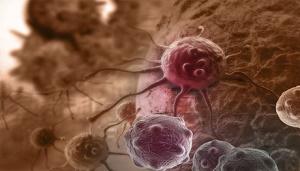 ۴۰ درصد از سرطانها قابل پیشگیری هستند