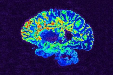 آنتی هیستامین در بهبود عملکرد مبتلایان به «ام اس» موثر است