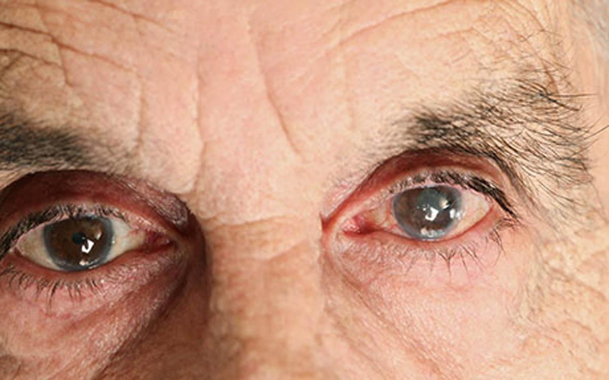 نازک شدن شبکیه از اولین علایم پارکینسون