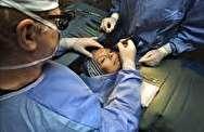 رواج جراحی های زیبایی نامتعارف در کشور