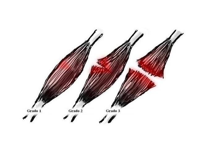 محبی/علت ایجاد پارگی عضله + راههای درمان