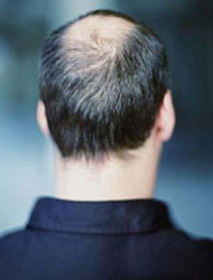 ریزش مو صفراوی
